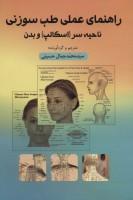 راهنمای عملی طب سوزنی (ناحیه سر (اسکالپ) و بدن)