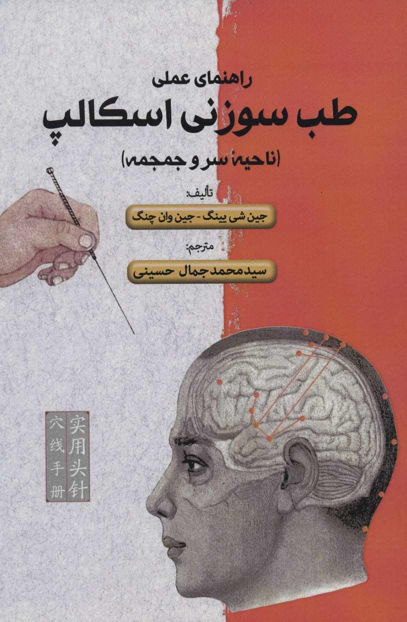 راهنمای علمی طب سوزنی اسکالپ (ناحیه سر و جمجمه)